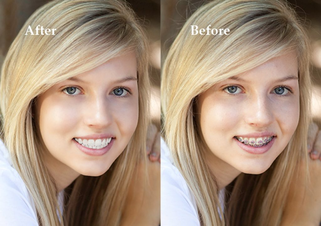 Braces_Removal_Before-After.jpg